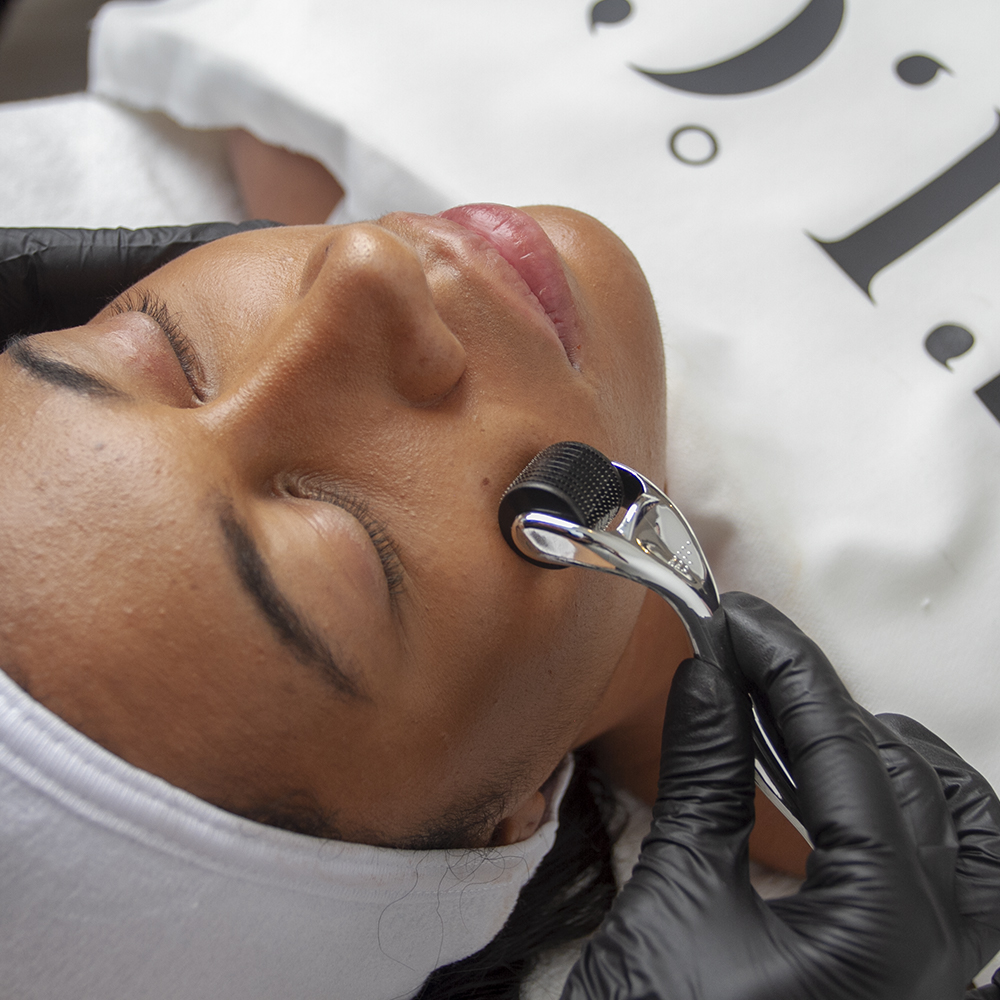 5 things you need to know about Microneedling!